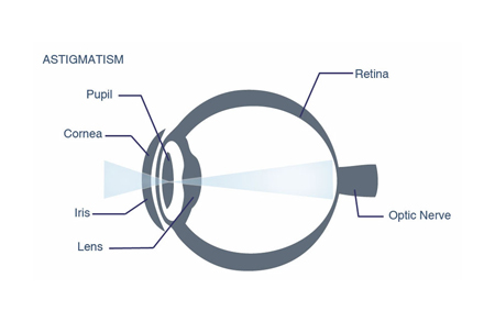 Astigmatism forces the light that enters the eye to be refracted unevenly.